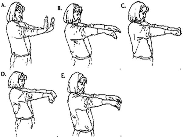 phòng ngừa hội chứng ống cổ tay